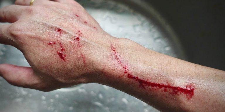 Bite Injury